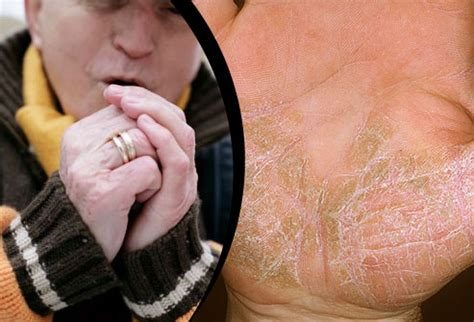 how to make a tattoo stop itching 10 psoriasis triggers and how to handle flare ups in pictures