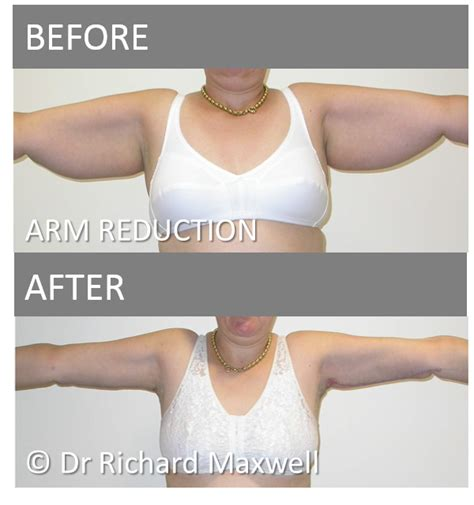 contouring following bariatric surgery and weight loss post bariatric contouring books lift surgery contouring after weight loss melbourne