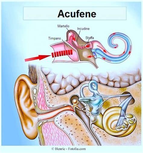 dolore all orecchio interno acufeni cura e rimedi naturali terapia ginkgo biloba