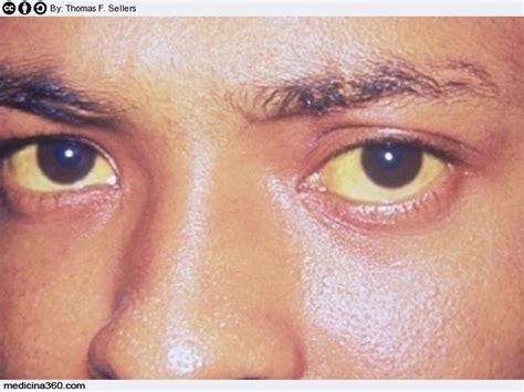 sindrome di gilbert alimentazione bilirubina alta