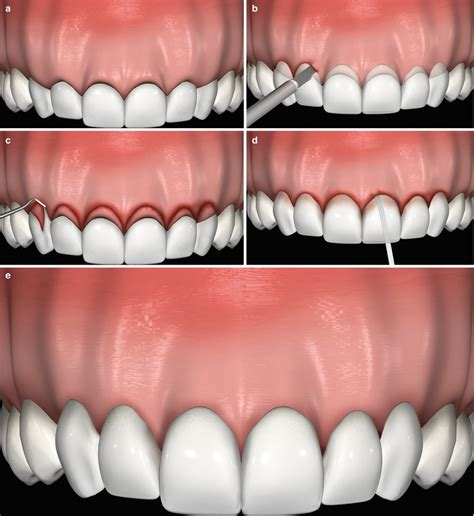 surgical esthetic correction for gingival pigmentation esthetical clinical crown lengthening lip repositioning