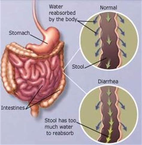 mucus in stool symptoms and remedies stomach problems