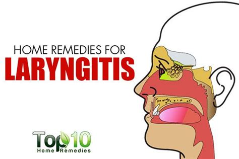 17 best images about remedies on