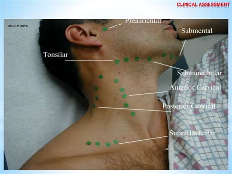Arya Cp lymphatic drainage of and neck by dr c p arya b