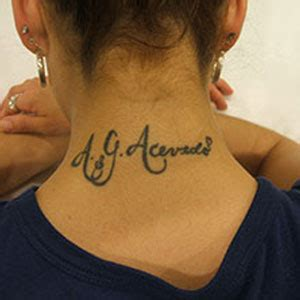 tattoo removal detroit ink blasters precision laser removal in metro detroit