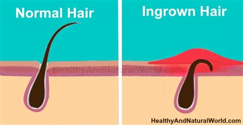 how to pop a pubic ingrown pics how to get rid of ingrown hair the best natural ways