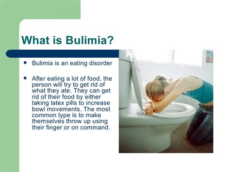 what is a one bulimia presentation