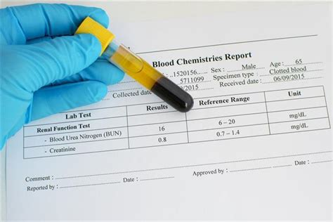 creatine in blood test how to reduce creatinine levels in blood
