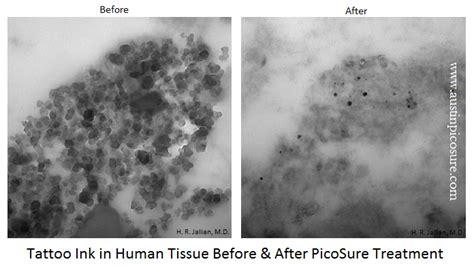 picosure tattoo removal process picosure laser tattoo removal is a physical process