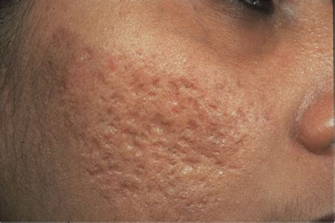 how do you acne scarring