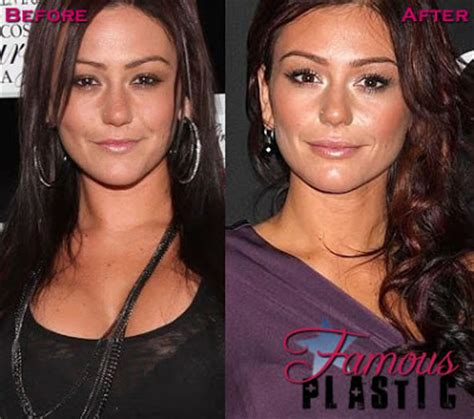 jenni jwoww before and after plastic surgery breast jenni farley jwoww plastic surgery before and after