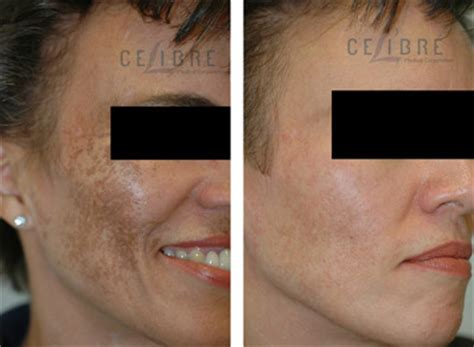 hydroquinone tattoo removal is hydroquinone safe