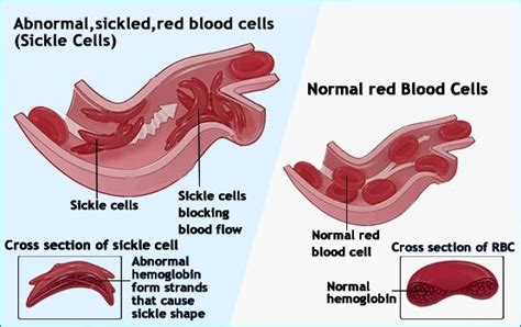 sickle cell diagram sickle cell anemia cytoskeleton