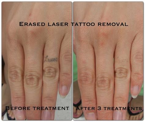 erased tattoo removal after the 3rd treatment erased removal las vegas
