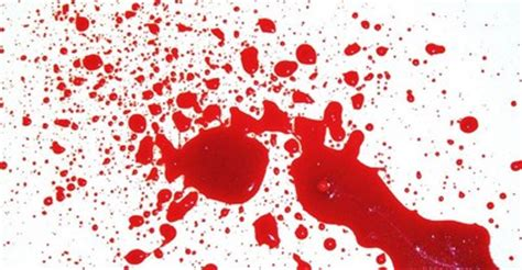 sintomi emorragia interna emorragia o forte perdita di sangue primo soccorso