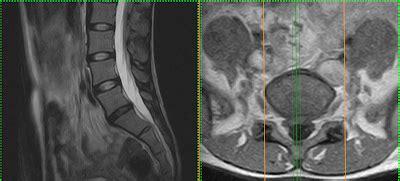 casa di cura villa dei gerani terapia dolore interventistica vertebrale