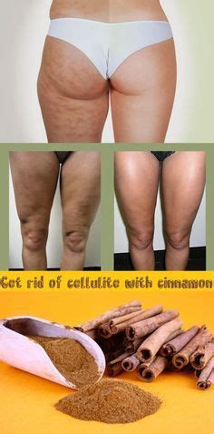 Which Beat Cellulite by Beats And Honey On