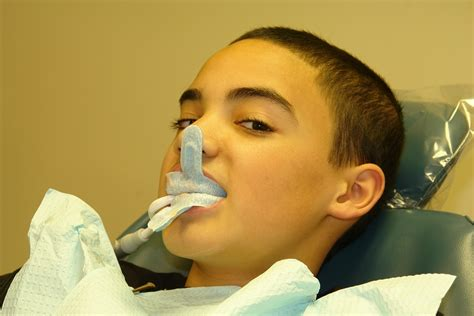 fluoride   dental health part  brampton