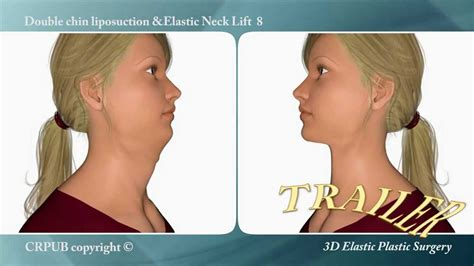 double chin tuck sew 23 3d double chin liposuction and immediate implantation