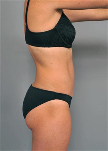 will insurance pay for tummy tuck after c section photo gallery tummy tuck new york city for diastasis