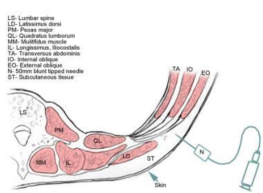transverse c section transversus abdominis plane block background indications