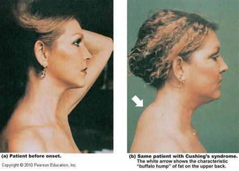 cushings disease cushing s disease symptoms in