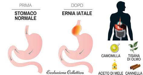 alimentazione per ernia iatale ernia iatale cos 232 sintomi e rimedi evoluzione collettiva