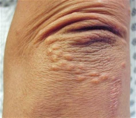 has bumps on skin skin colored bumps 28 images the gallery for gt raised skin bumps healthy skin