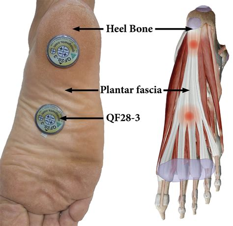 planters fasciitis relief using q magnets and magnetic field therapy for heel