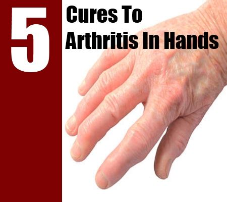 arthritis remedy 5 cures for arthritis in how to cure arthritis in search