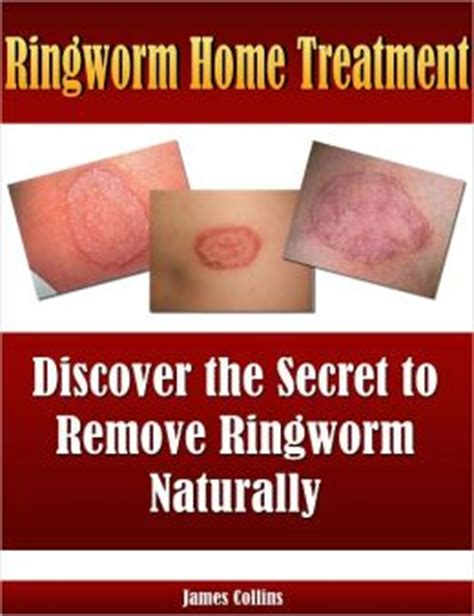ringworm home treatment discover the secret to remove