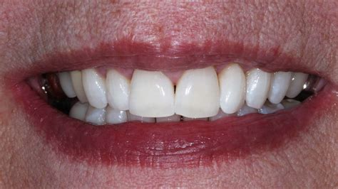 cosmetic dentistry   afters floss dental boutique