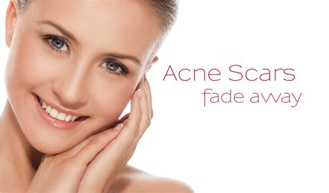 best scar medicine derma med spa best skin care clinic in chennai