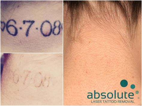 tattoo removal advice tips to minimize scarring with laser removal