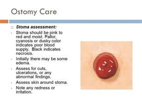 dusky colored stoma 20130830dusky colored stoma periodic tables