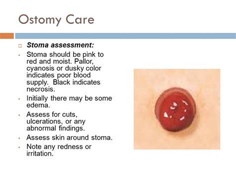 dusky colored stoma ostomy care nursing i ppt