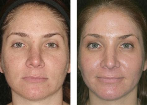 anti aging amp rejuvenation before and after fort
