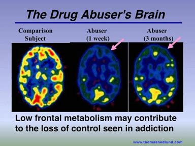 Brain Detox And Iodine Inhaling by The Effects Of Drugs Of Abuse On The Brain Learning To