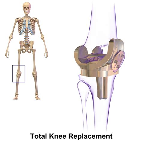 total knee replacement diagram knee replacement