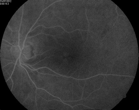 early pattern dystrophy pattern macular dystrophy retina image bank