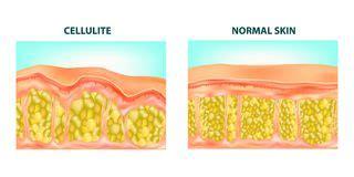 human skin layer vector cross section stock vector 520713712 istock human skin layer vector cross section stock vector illustration of anatomy hair 34806992
