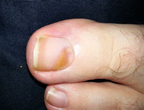 bruised nail bed melanoma under toenail treatment related keywords