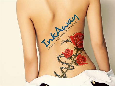 tattoo removal up close blog latest posts inkaway laser tattoo removal