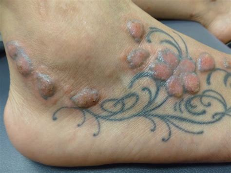 tattoos can cause serious adverse reactions