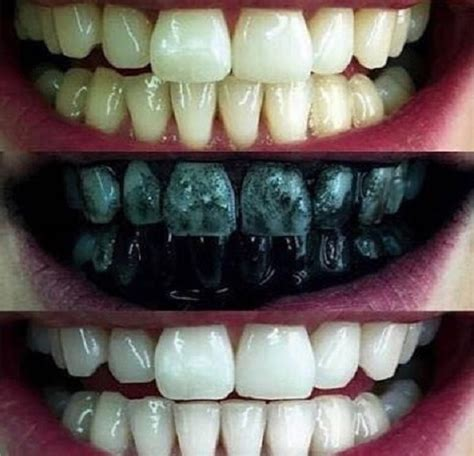 whitemax clareador dental carvao ativado  original