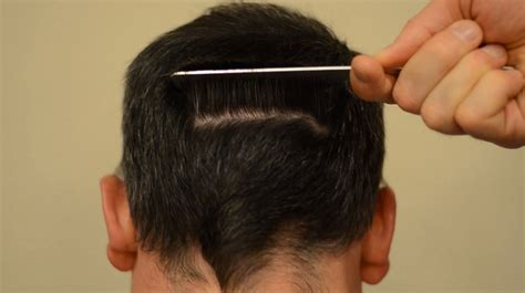 hair of the hair transplant scars must see undetectable scars