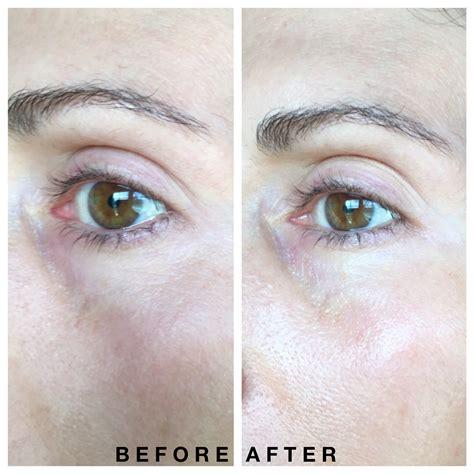 Shiseido Mask shiseido benefiance retinol eye mask review
