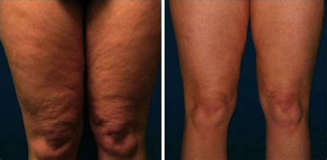 leg treatment portland or key laser center
