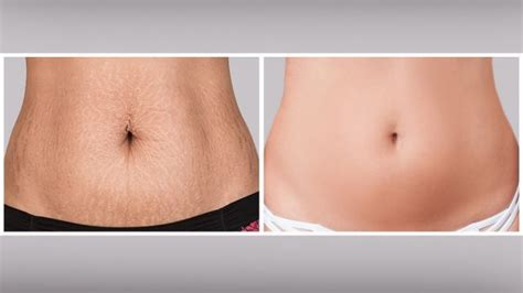 12 Ways To Tighten Your Stomach After A Baby by How To Tone Skin After Weight Loss Naturally Lose