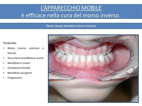 apparecchio interno fisso ortodonzia infantile e non prima e dopo